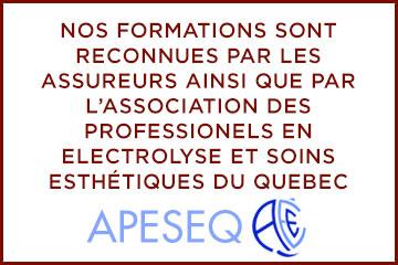 epilation-laser-apeseq